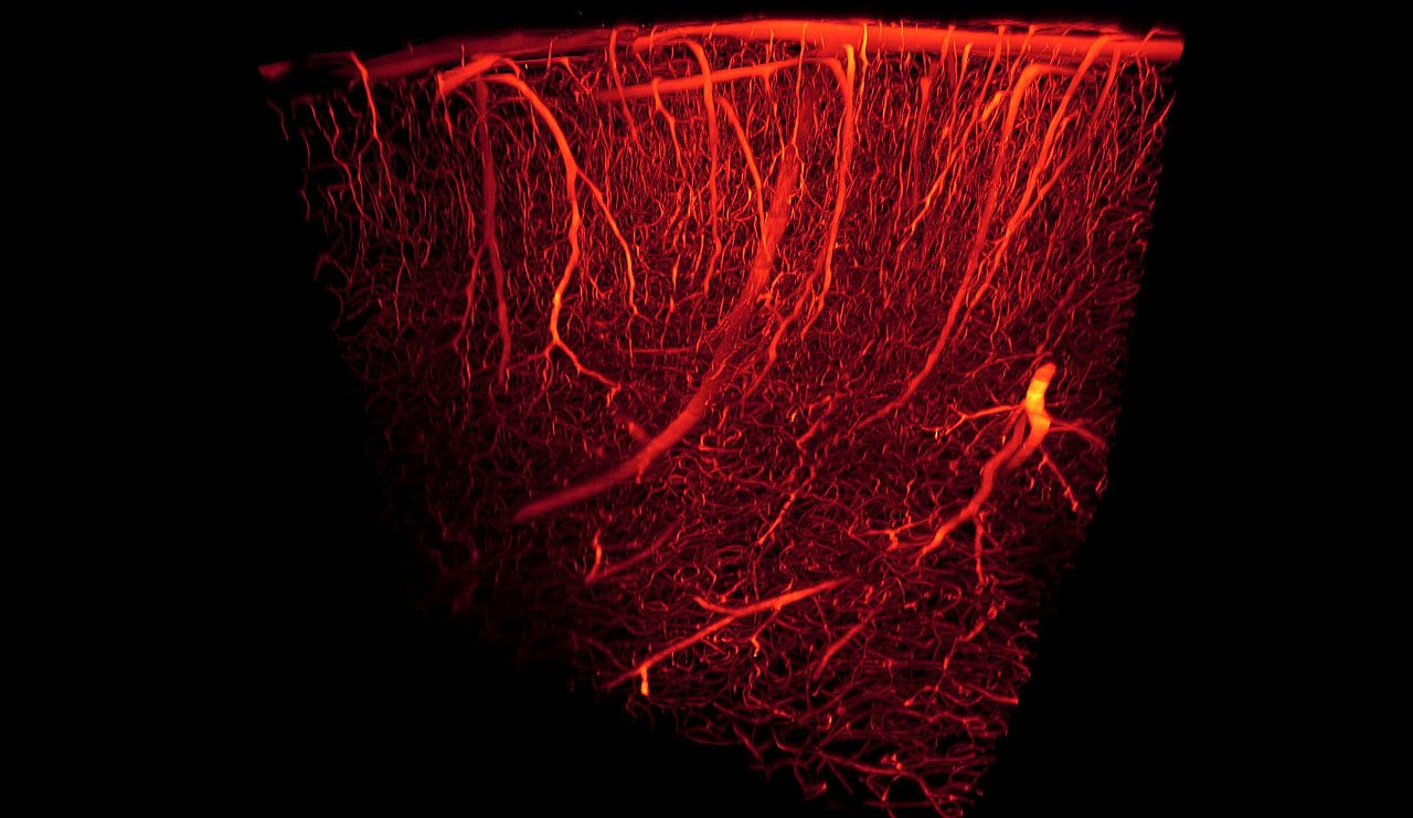 Manufacturing Synthetic Blood Vessels That Grow With The Patient